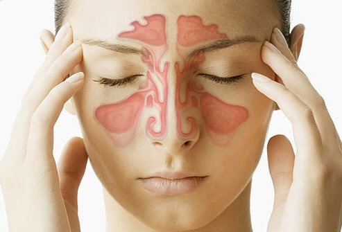 Coping with Sinus Problems and Sinus Migraine Headaches